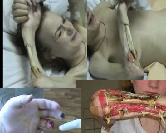 Legalize drugs – warning disturbing content and pictures cannibal